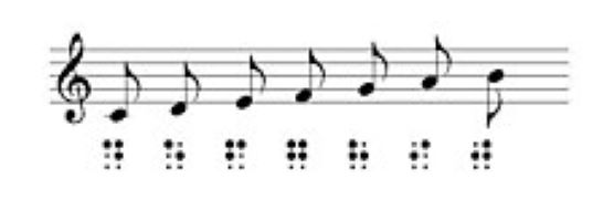 music notes with braille beneath each note